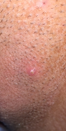 hpv wart vs ingrown hair)
