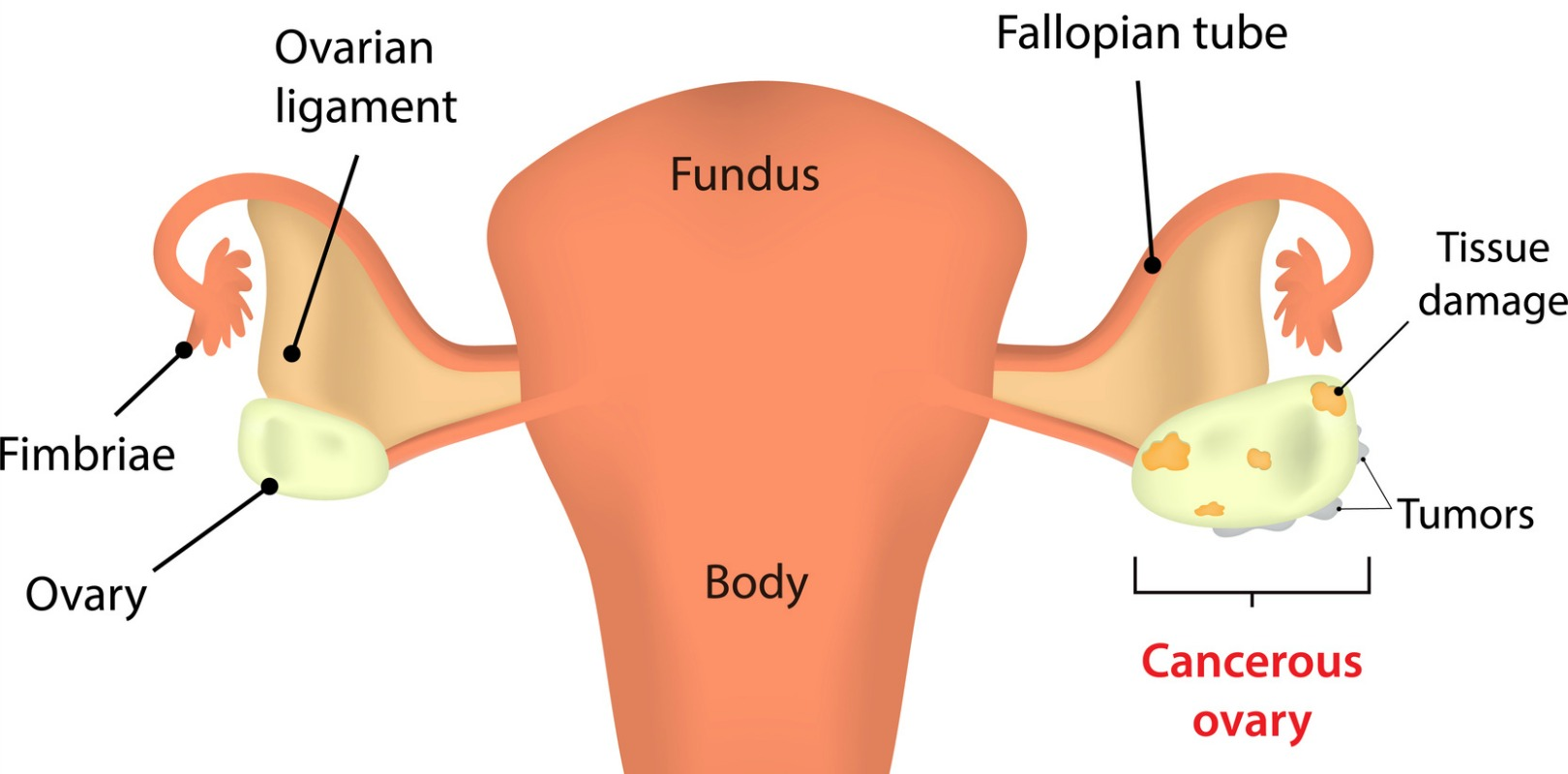 ovarian cancer during pregnancy)