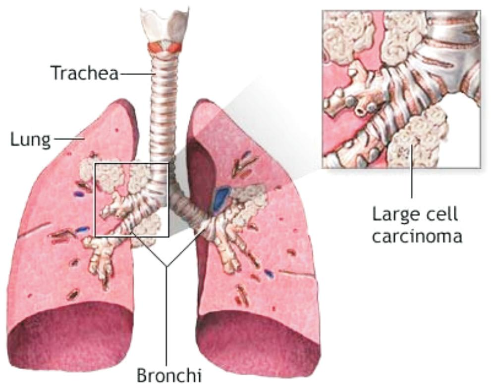 cancerul bronhopulmonar amg