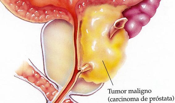 cancer de prostata metastasis osea sintomas)