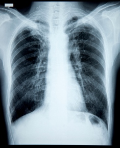 cancer pulmonar la copii