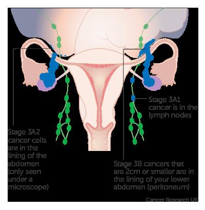 ovarian cancer treatment stage 4 cancer la plamani celule mici