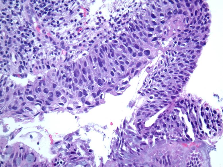 hpv virus pathology