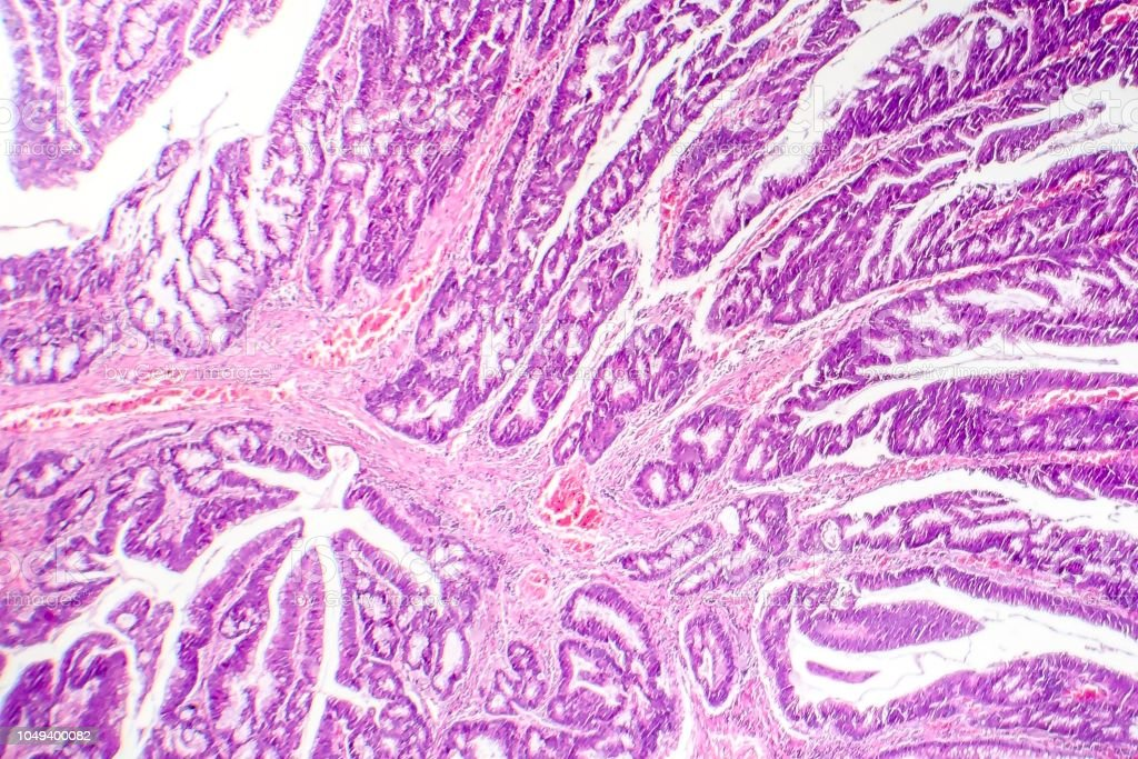 cancer colon adenocarcinoma