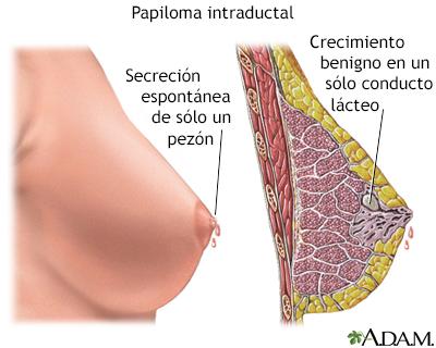 papiloma en seno)