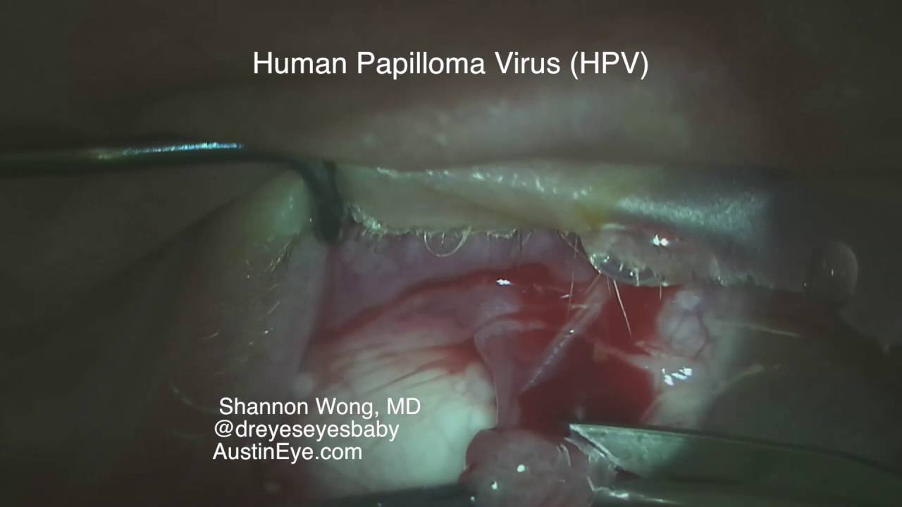 conjunctival papilloma removal