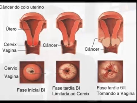 sintomas do cancer de colo de utero hpv)