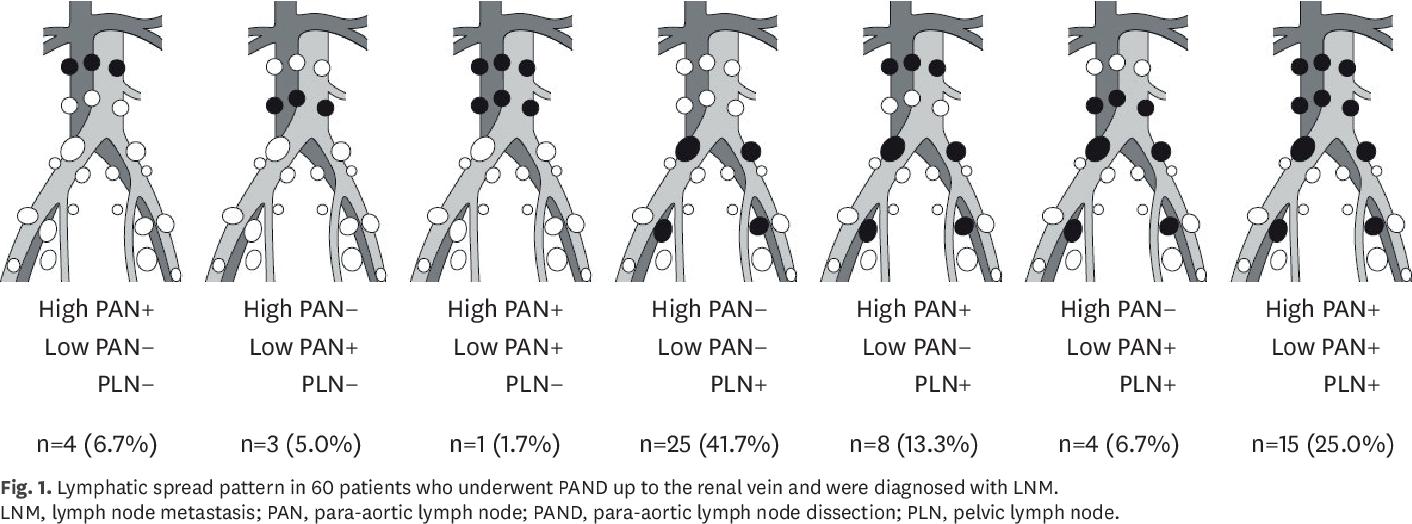 Cancerul de canal anal - aspecte legate de diagnostic și tratament