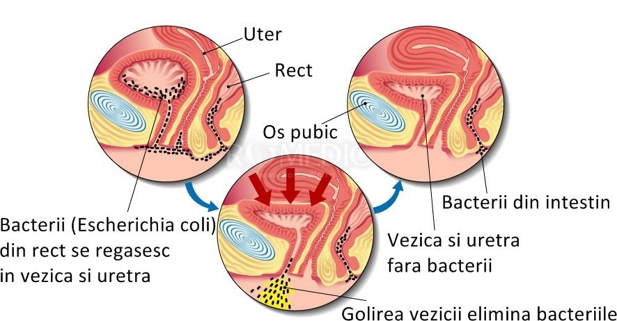 bacterii in urina