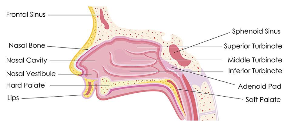 sinus papilloma symptoms