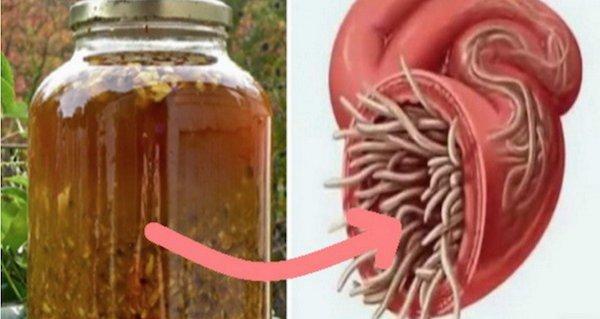 parazitii din corpul omenesc cancer la femei