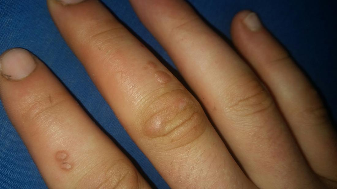 hpv and warts on fingers)