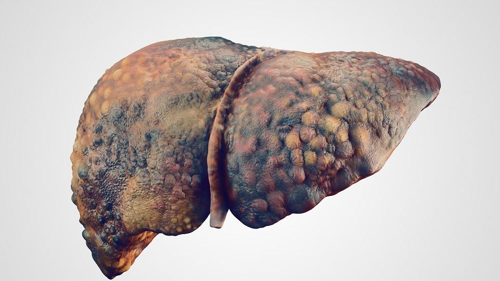 cancer de ficat stadiul 4)