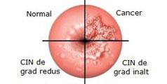 cancer de col uterin in situ
