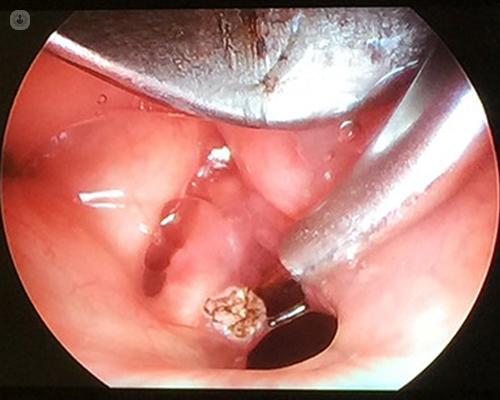 how to treat laryngeal papillomatosis