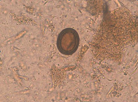 analize paraziti intestinali pret cancer plamani doare