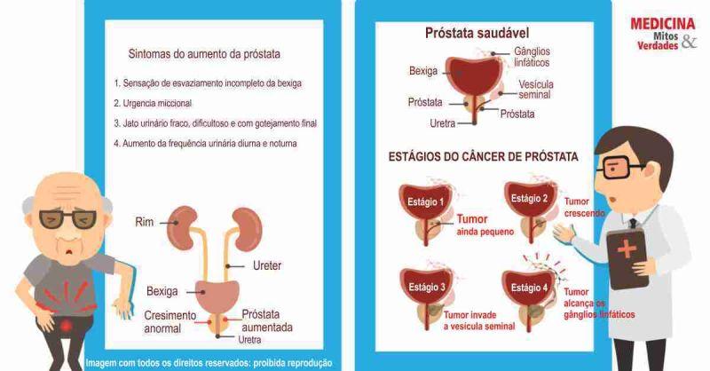 Le dimensioni della prostata
