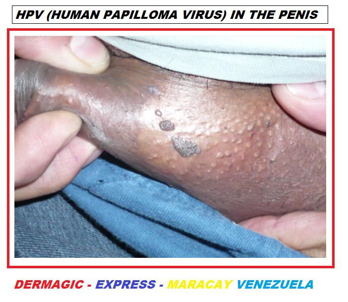 papilloma virus hpv)