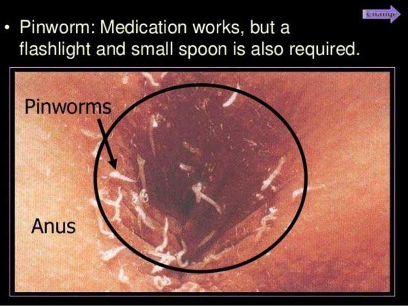 papilloma virus contagio uomo