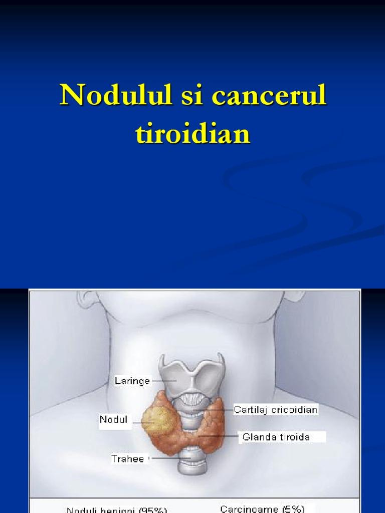 carcinom tiroidian folicular