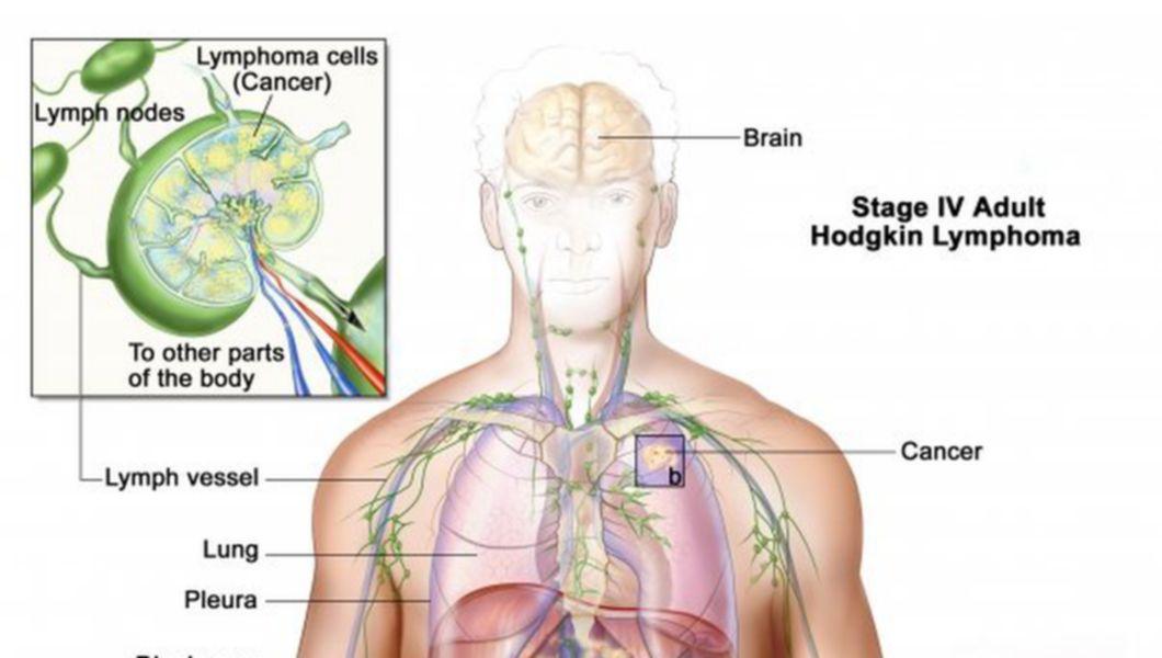 ce inseamna cancerul limfatic)