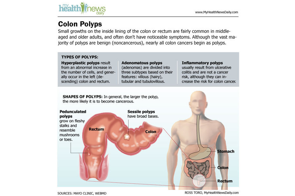 cancer intestinal causes