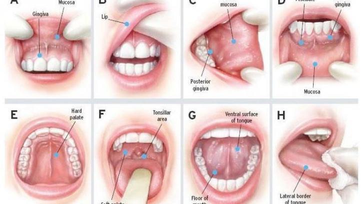 cancerul in gat simptome)