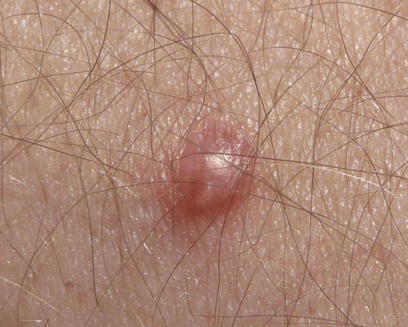 papiloma virus verruga genital)