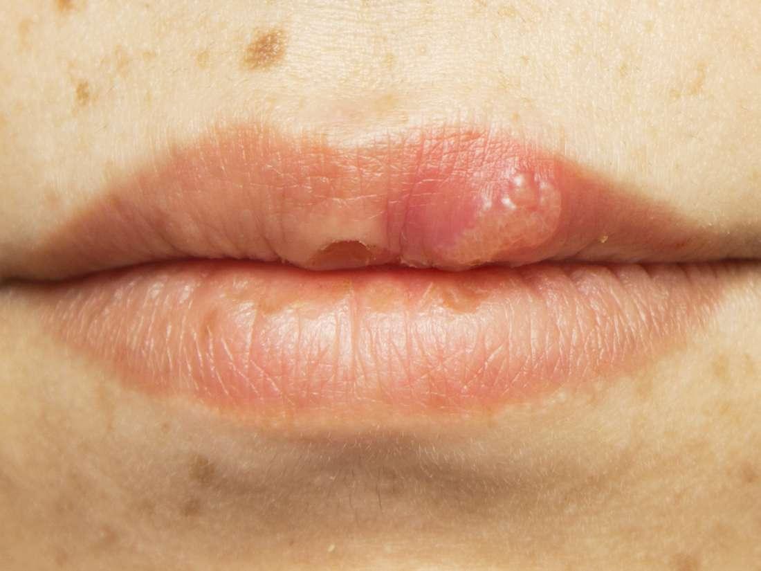 hpv lip lesions)