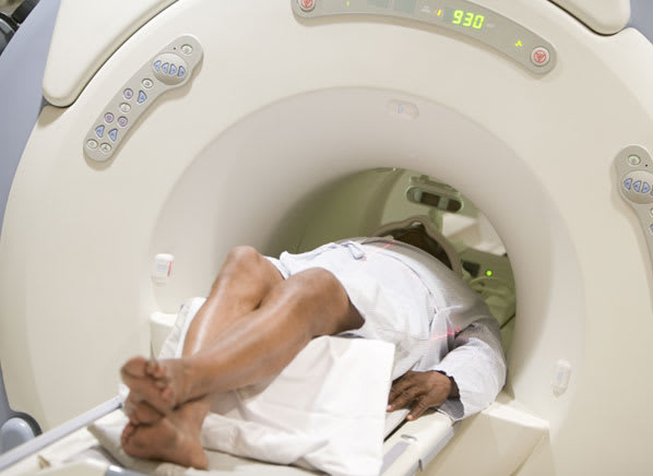 cancer risk abdominal ct scan