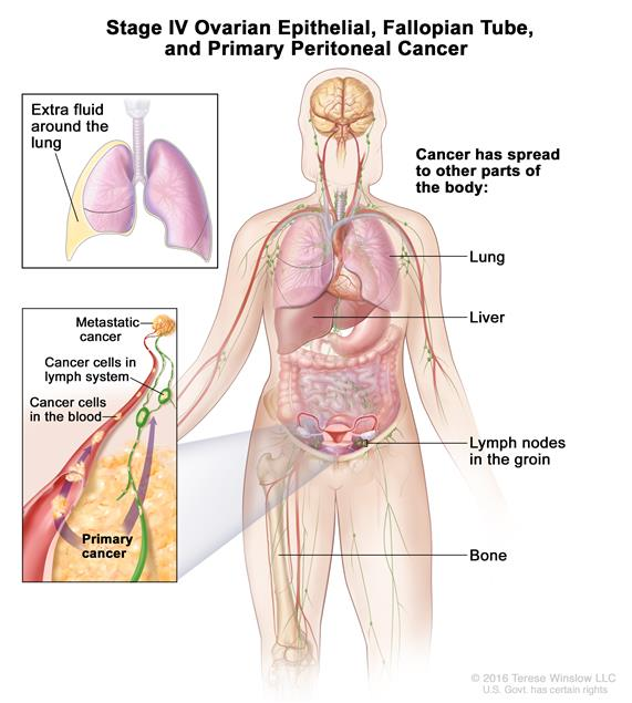 peritoneal cancer nci)