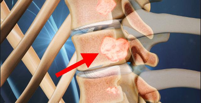 cancerul de colon si durerile de spate)