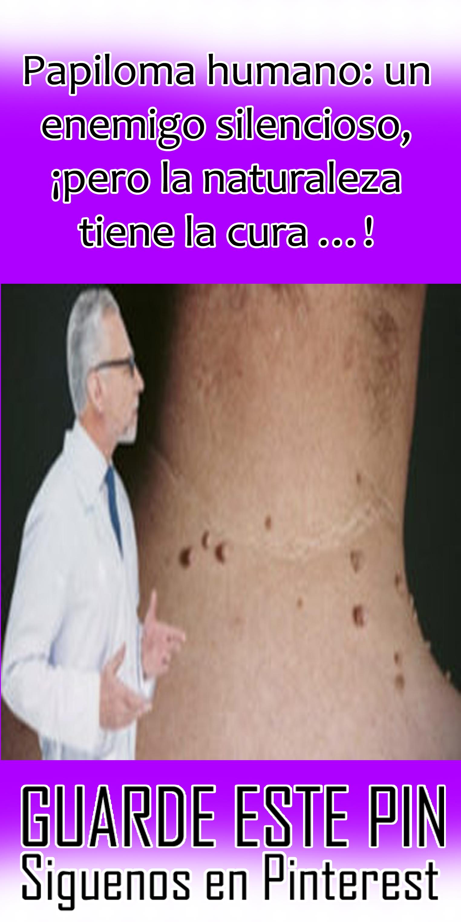 papiloma humano tiene curacion)