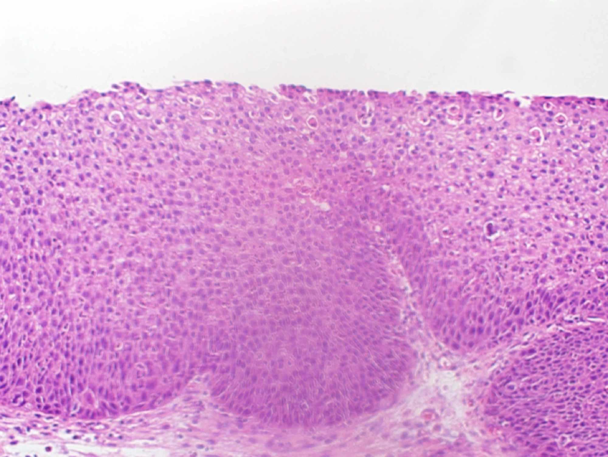 inverted papilloma ear