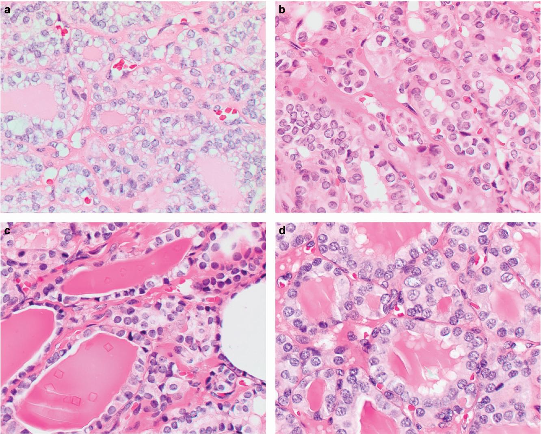 Adenomata tiroidiană