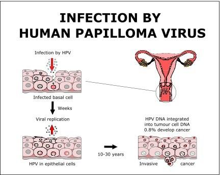 human papillomavirus infection while pregnant)