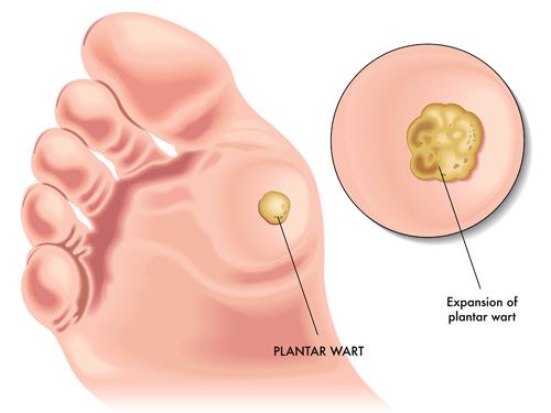 paraziti u nasem telu genetic cancer of liver