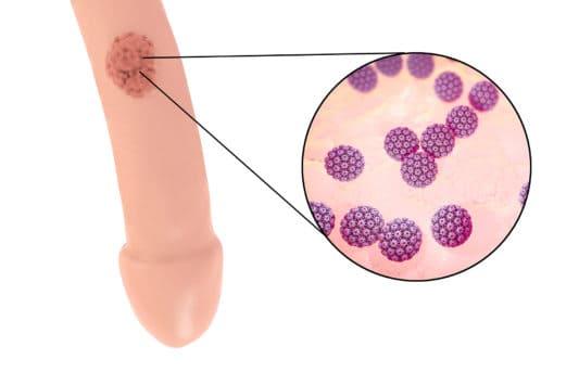 papillomavirus contagieux homme)