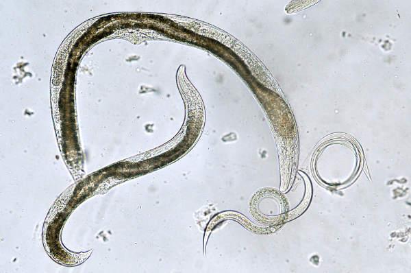 parazitii intestinali limbricii)