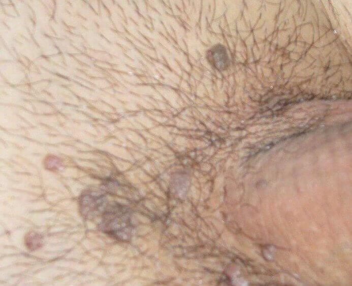 hpv erkeklerde tedavisi)