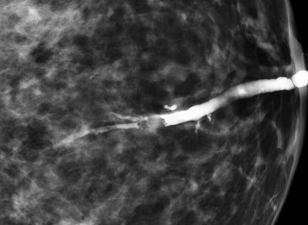 intraductal papilloma with calcifications)