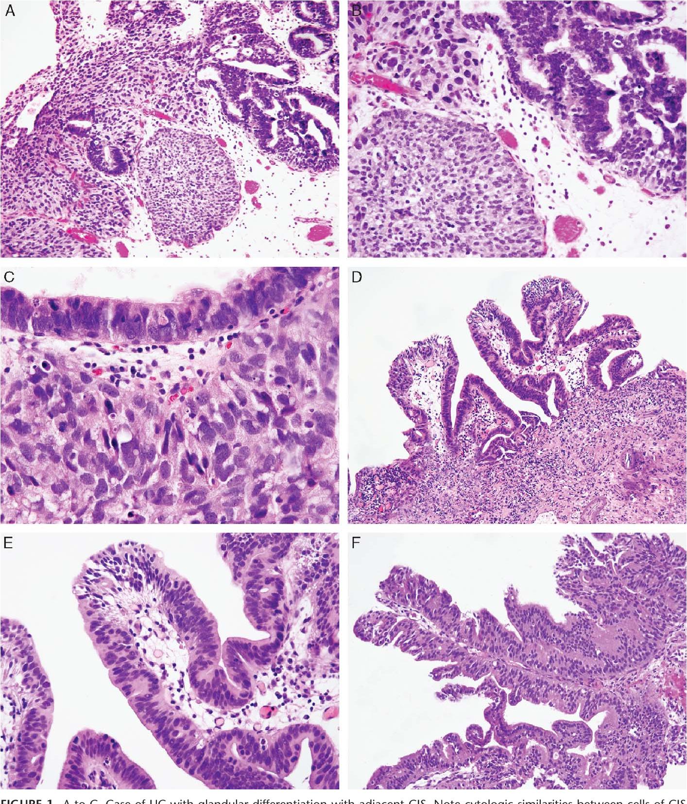 papillary urothelial carcinoma with glandular differentiation)
