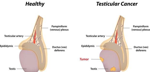 Cancer Pancreatic - Prezentare de Caz Si Consideratii Teoretice