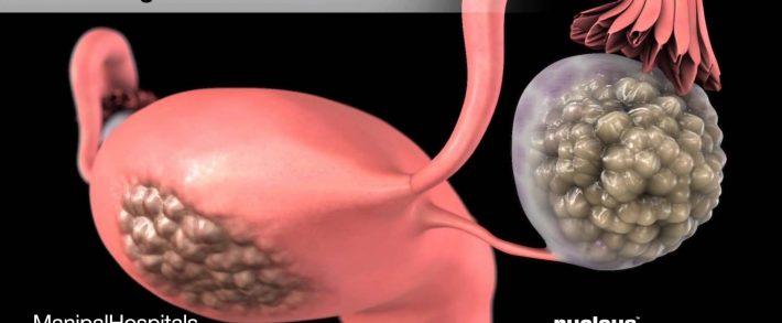 oxiuros inflamacion hpv no cancer or warts