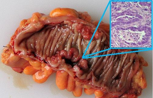 cancerul de colon sanse de supravietuire)