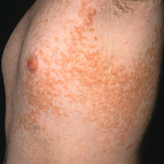 papillomatosis skin rash hpv infection and lung cancer