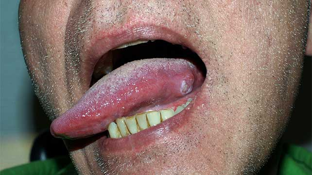 hpv on tongue removal
