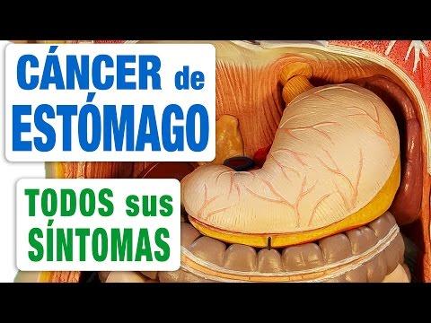 cancer de colon ultima etapa sintomas