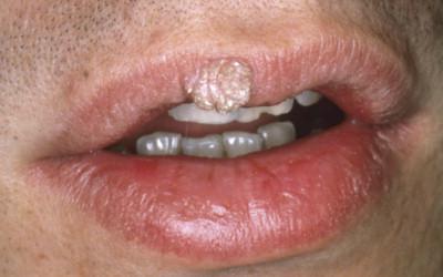 papilloma virus al labbro)