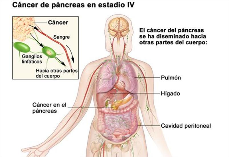 cancer de pancreas con metastasis en higado